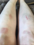 Theatre Bruises
